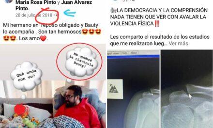 Merlo: ¿Álvarez Pinto usó una fractura del 2018 para acusar a ATE?